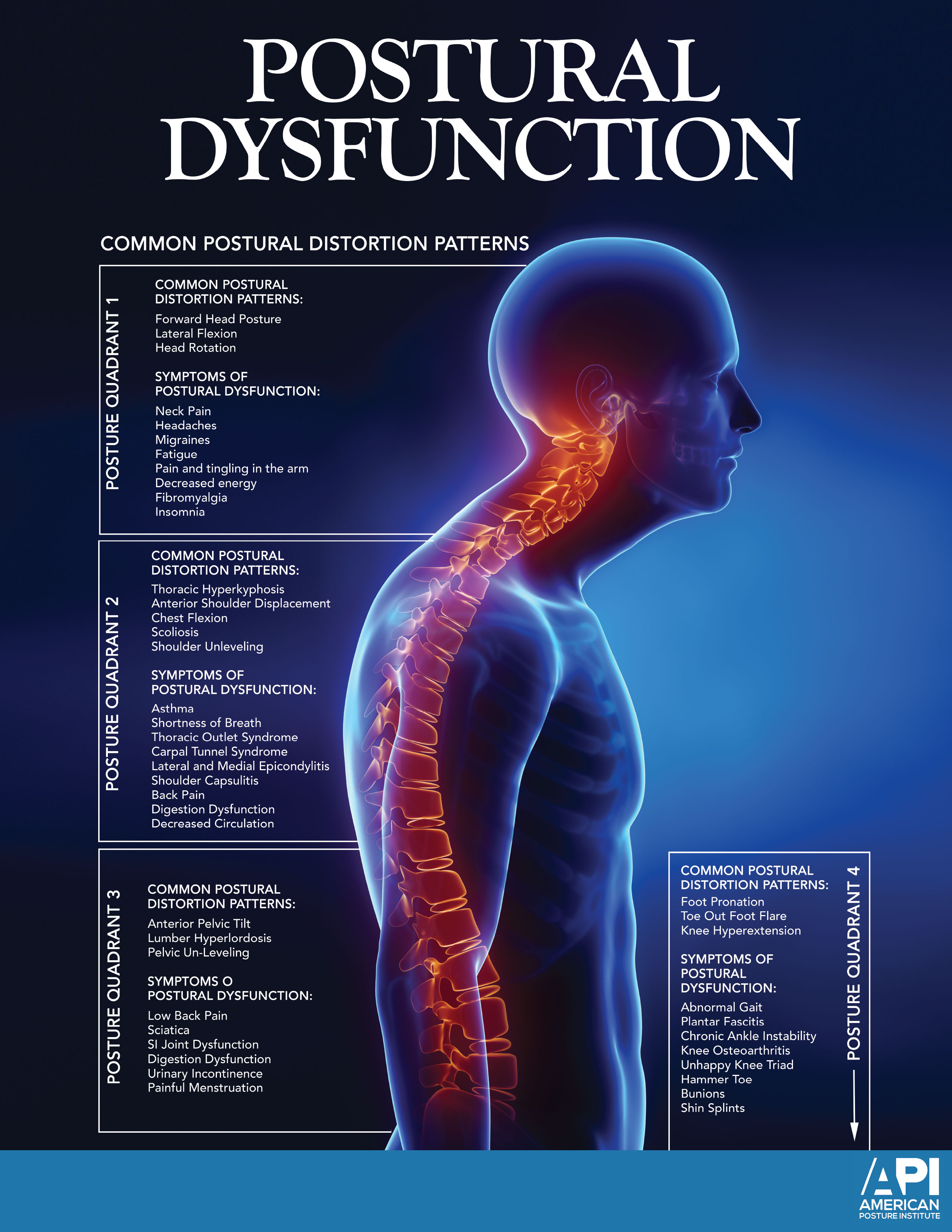 Postural Dysfunction Poster