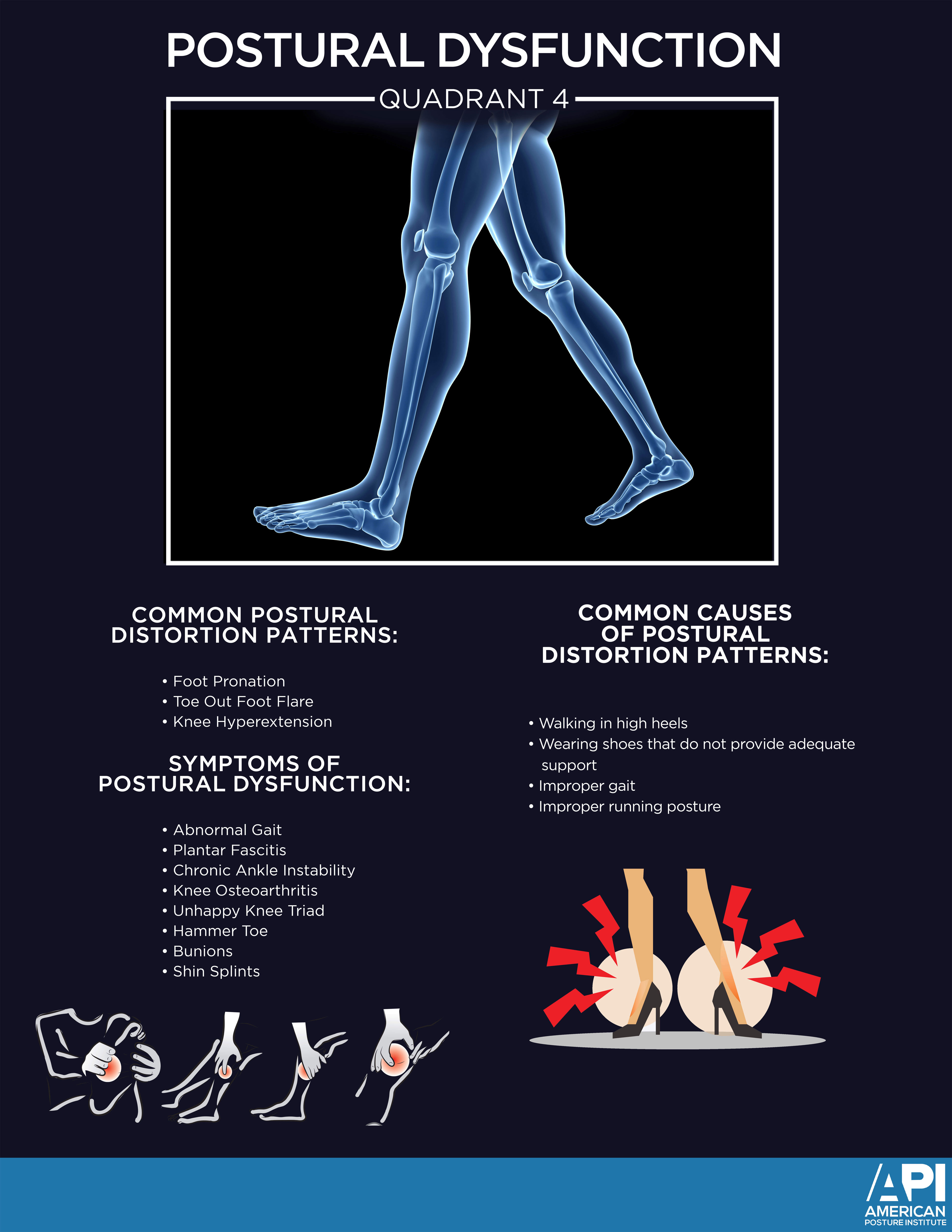 Postural Dysfunction Quadrant 4 Poster